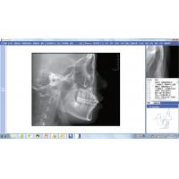 Quality Associated Cephalometric Measurement Software for CBCT Cone Beam Computed Tomography Equipment for sale