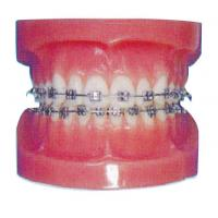 Quality Orthodontic Human Teeth Model for Hospitals And Dental Hospital Training for sale
