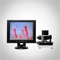 Buy cheap 2017 New Arrival SSCH Color LCD Display Clincial Blood Analysis Microcirculation Microscope product