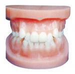Quality Dental implant models / Orthodontic Model for Anatomical Training for sale
