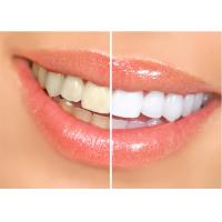 Buy Dental Laser Machine For Teeth Whitening Therapy , Dental Laser Treatment For Soft Tissue at wholesale prices