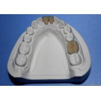 China Dental Porcelain Fused To Metal Crown on sale